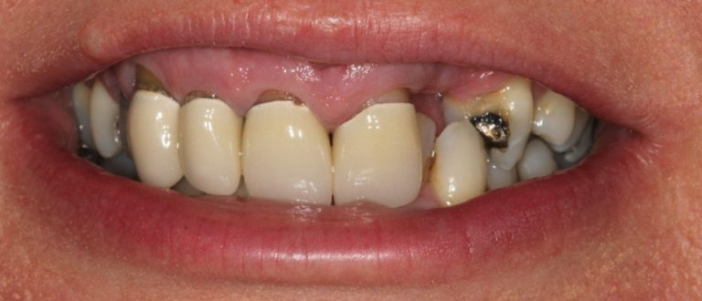 bexleyheath dentist smile makeover
