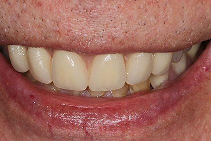 John after smile makeover at Dental Beauty Bexleyheath in kent