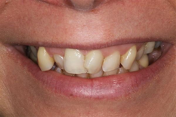 teeth straightening in bexleyheath